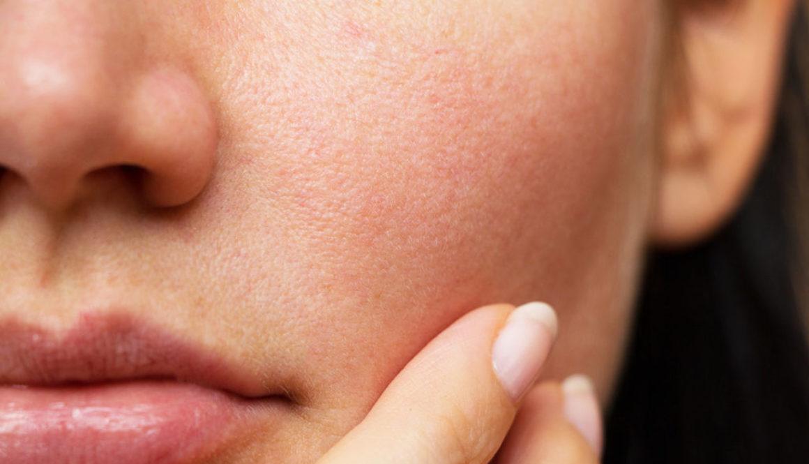 Image : peau de visage de femme
